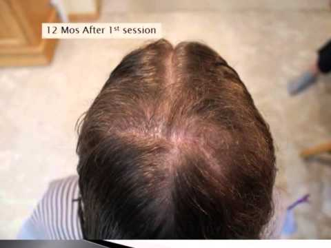 Bleaching Hair caused Bad Chemical Burn to Scalp with Permanent Hair Loss