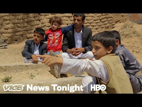 Xxx Mp4 This Yemeni Boy Survived An Airstrike That Killed 45 Kids HBO 3gp Sex