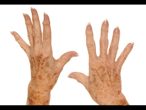 How to Remove Age Spots on Your Hands -  Remove Brown Spots On Skin tips