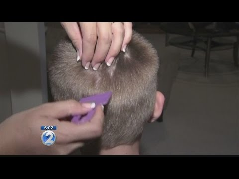 State will allow students with head lice to remain at some schools