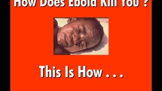 How Does Ebola Kill You ? Learn The Facts