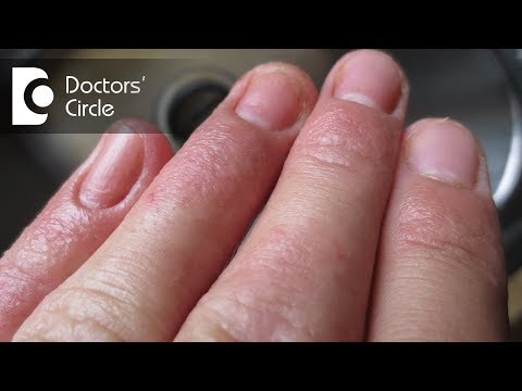 How to treat Contact Dermatitis on fingertips? - Dr. Aruna Prasad