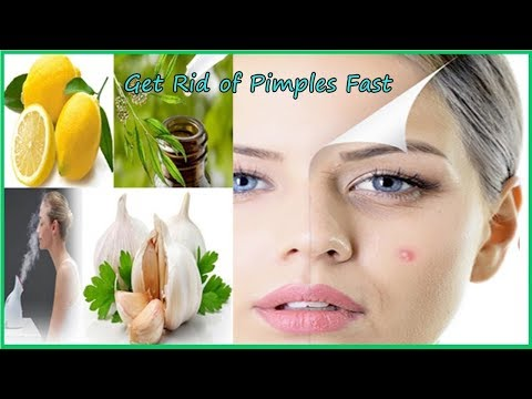 How To Remove Pimples From Face Naturally Fast At Home Overnight (STEP BY STEP)