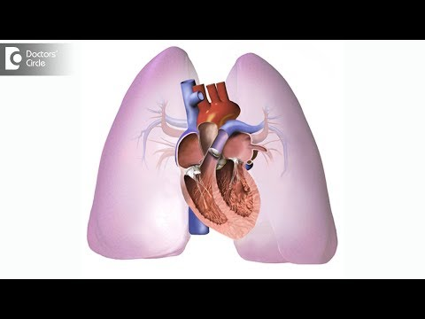 What is the treatment of  Pulmonary Embolism? - Dr. Mohan Kumar HN