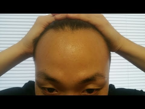 HOW TO FIND OUT HOW BALD YOU ARE!