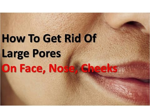 How To Get Rid Of Large Pores At Home (On Face, Nose, Cheeks)