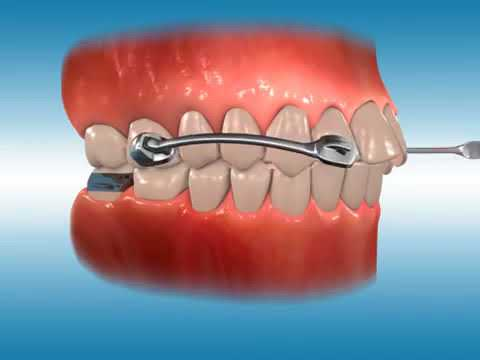 Carriere Orthodontic Appliance