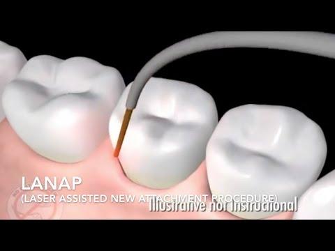 How Does Laser Surgery Work? Treat Gum Disease - LANAP