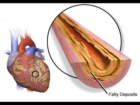 Coronary Artery Disease CAD Diagnosis