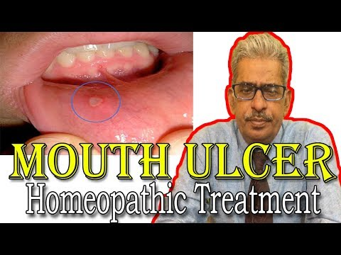 Mouth Ulcer  in Hindi - Discussion and Treatment in Homeopathy by Dr P.S. Tiwari