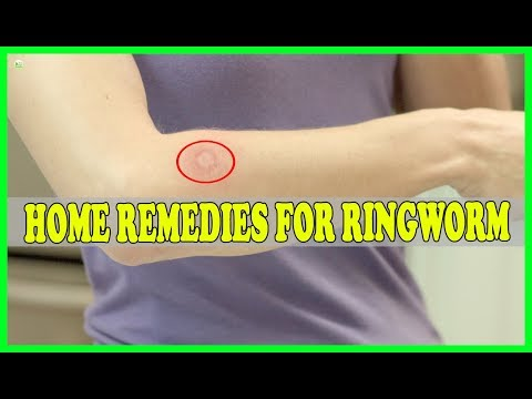 9 Effective Natural Home Remedies For Ringworm | Best Home Remedies