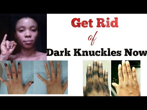 Get Rid of Dark Knuckles Now| Dark knuckles cream| Tips of how to fade Dark knuckles
