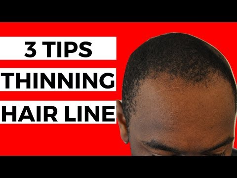 3 Tips For THINNING Hair Line | Black Men Balding
