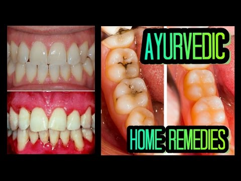 EASY Ayurvedic Remedies for Healthy Teeth & Gums