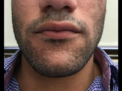 HOW TO GROW YOUR BEARD FASTER - YOU DON'T