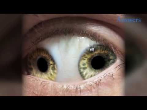Rare Eye Conditions You Have To See To Believe