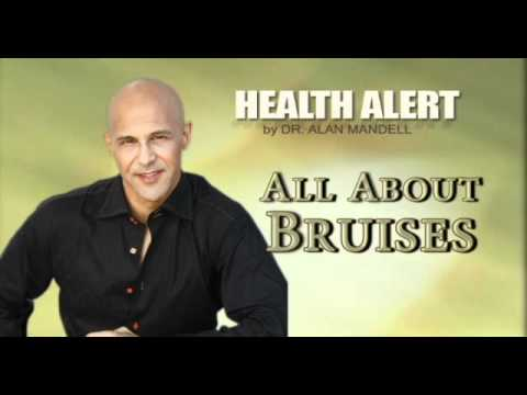 All About Bruises / Health Alert / Doc Alan