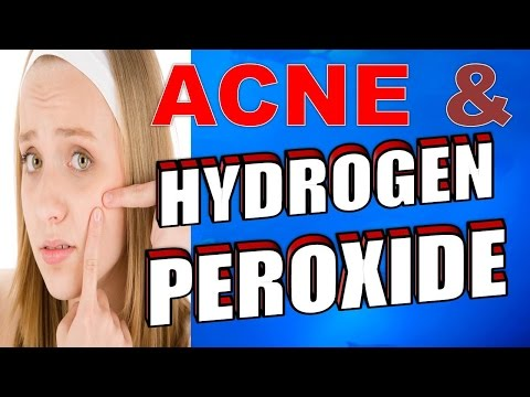 6 SIMPLE STEPS for using HYDROGEN PEROXIDE for ACNE