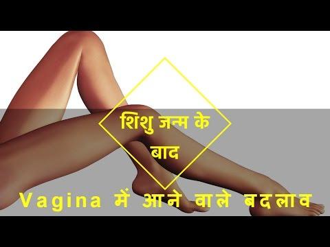Xxx Mp4 शिशु जन्म के बाद Private Parts में बदलाव 3gp Sex