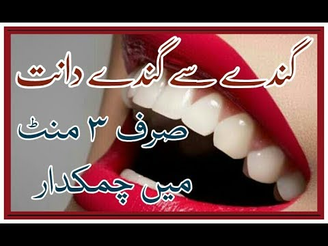 Whiten Your Teeth Within 3 Minutes | Urdu Hindi | Lemon + Baking Soda + Banana Peel | Beauty Tips |