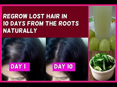 Regrow Lost Hair in 10 Days from the Roots Guaranteed - No hair loss and fast hair growth