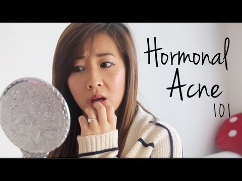 How to Treat Hormonal Acne 101