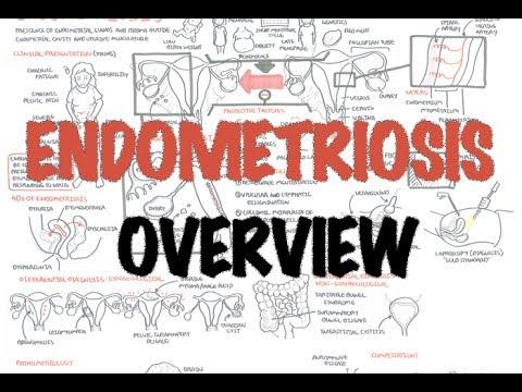 Endometriosis - Overview