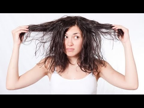 Do you have oily/greasy hair- Get rid of oily hair with Witch Hazel Scalp Toner