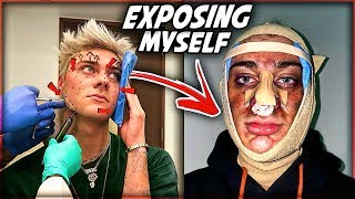 My Facial Plastic Surgery Experience... Fixing My BIGGEST INSECURITY!