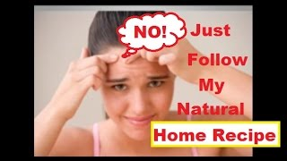 How To Stop Acne Naturally Natural Remedies For Pimples