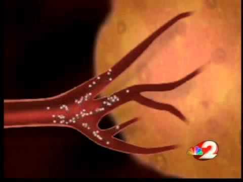 Liver tumor treatment