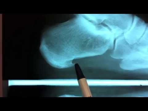 Heel Spur / Plantar Fasciitis Surgery - Houston Foot Surgeon - Dr Robert J Moore III
