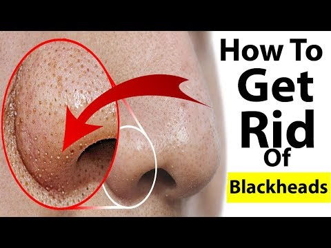 How to Get Rid of Blackheads naturally / Best Remedy for Blackheads
