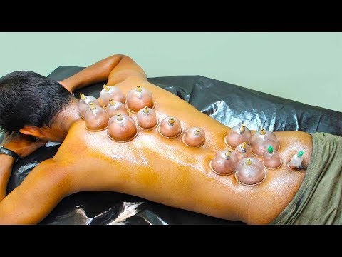 Cupping Therapy Alternative Medicine For Pain, Immunity & Digestion- Healthy Ways