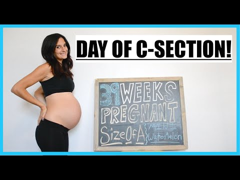 39 WEEKS PREGNANT! | DAY OF C SECTION! MY LAST UPDATE!!!!