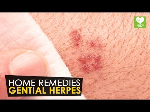 Gential Herpes - Home Remedies | Health Tone Tips