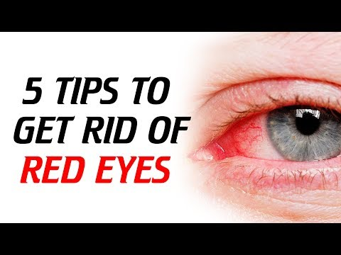REMEDIES TO GET RID OF RED EYES.