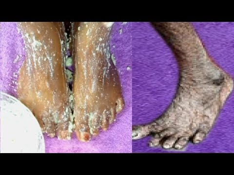 HOW I REMOVE WRINKLES ON MY FEET IN 2 DAYS |GET RID OF DRY ROUGH LOOKING FEET