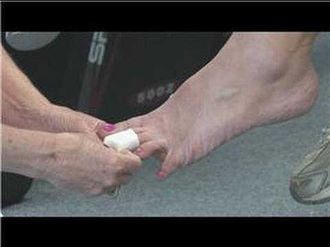 Physical Therapy Treatments : How to Heal a Broken Toe