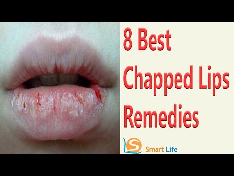 8 Best Chapped Lips Home Remedies