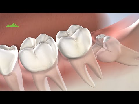 Post-Operative Instructions: Wisdom Teeth Removal | Provo UT | Utah Surgical Arts