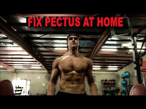 At Home Workout To Fix Pectus Excavatum