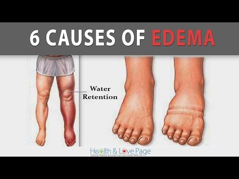 6 Causes of Edema Water Retention