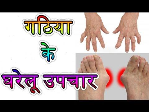 गठिया जड़ से खत्म करने के घरेलू उपचार-ARTHRITIS TREATMENT IN HINDI-Gathiya ka ilaj