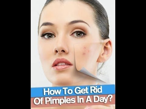 Get rid of pimples | Remove pimples in a day