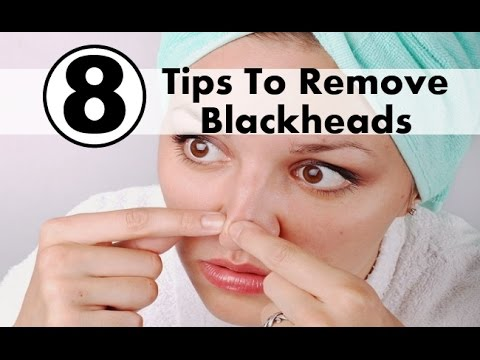 Home remedies to remove blackheads naturally at home
