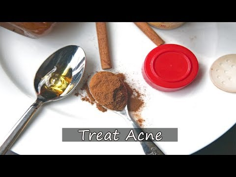 Can Honey and Cinnamon Treat Acne ? - V 4 YOU