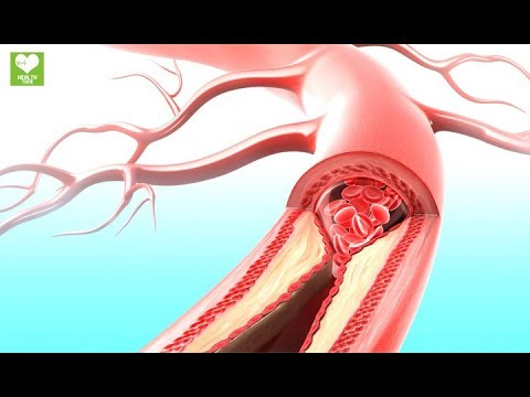 Signs And Symptoms Of Clogged Arteries | Health care tips at Health Tone