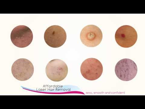 Advanced Cosmetic Procedures To Remove Milia, Skin Tags, Warts.