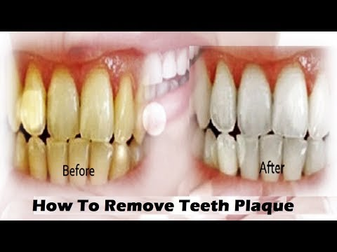 Getting Rid of Dental Plaque and Tartar at Home